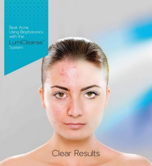 Lumicleanse | Clinique Esthétique Laroche