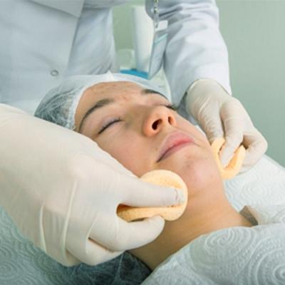 Peeling Acné |Clinique Esthétique Laroche